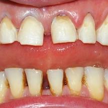 dintii pregatiti pentru fatetare